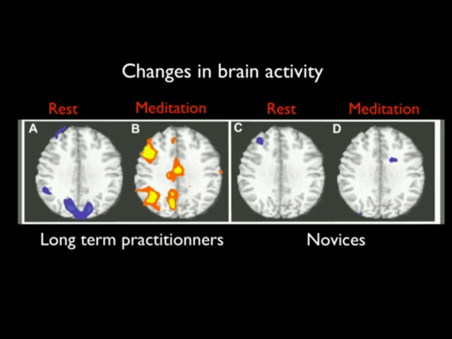 Increased activity in meditater's brains.